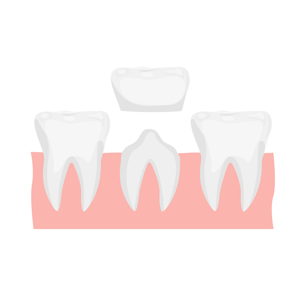 Несъемные зубные протезы: коронки